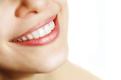 esthétique dentaire solutions